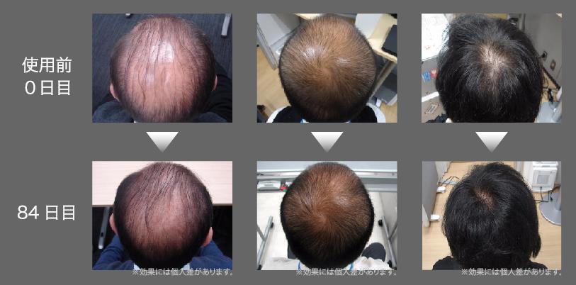 使用前使用後の比較画像
